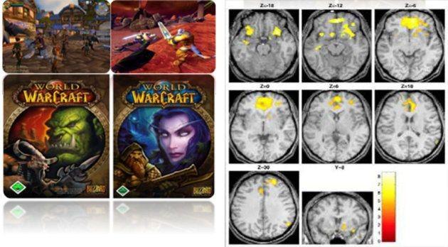ゲーム依存のMRI画像